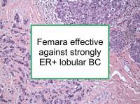 Femara effective for strongly ER+ lobular BC