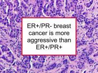 ER+/PR- BC is more aggressive than ER+/PR+