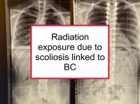 Radiation exposure due to scoliosis linked to BC