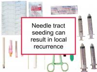 Needle tract seeding can result in local recurrence