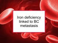 Iron deficiency linked to BC metastasis
