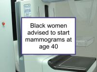 Black women should start mammograms at age 40