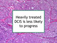 Heavily treated DCIS is less likely to progress