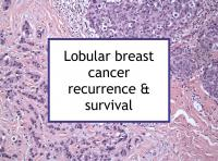 Lobular breast cancer recurrence & survival